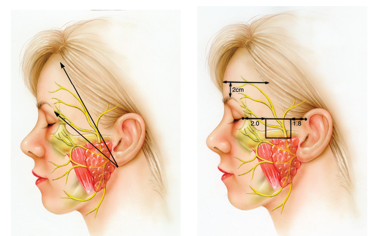 Improving Facial Symmetry With A Bell's Palsy Facelift