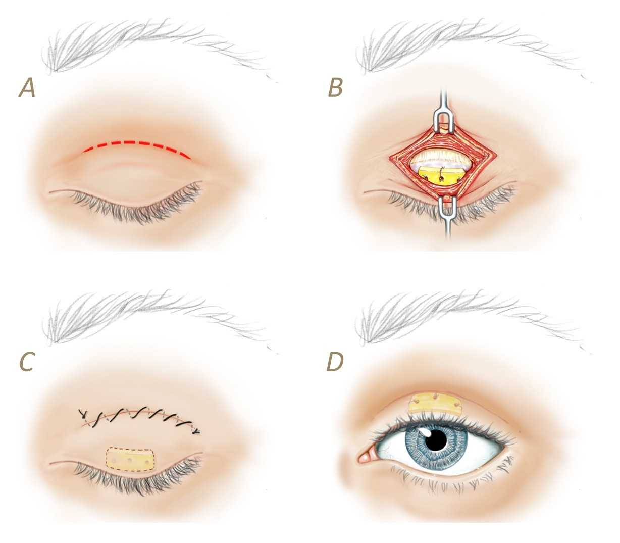 how does facial paralysis affect the eyes