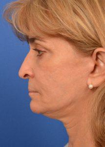 woman after elective neurolysis with facial rejuvenation