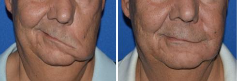 как показывает атрофия мышц лица с одной стороны фото они