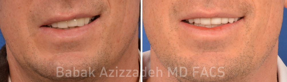male patient before and after facial paralysis treatment