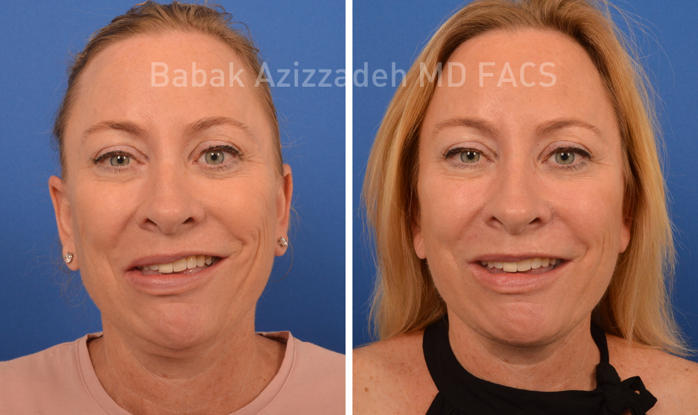woman before and after selective neurolysis surgery