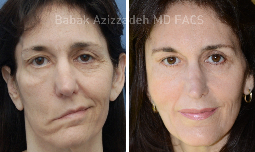 Before and after facial paralysis all