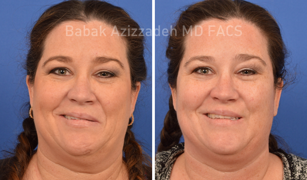 female patient before and 8 days after selective neurolysis surgery