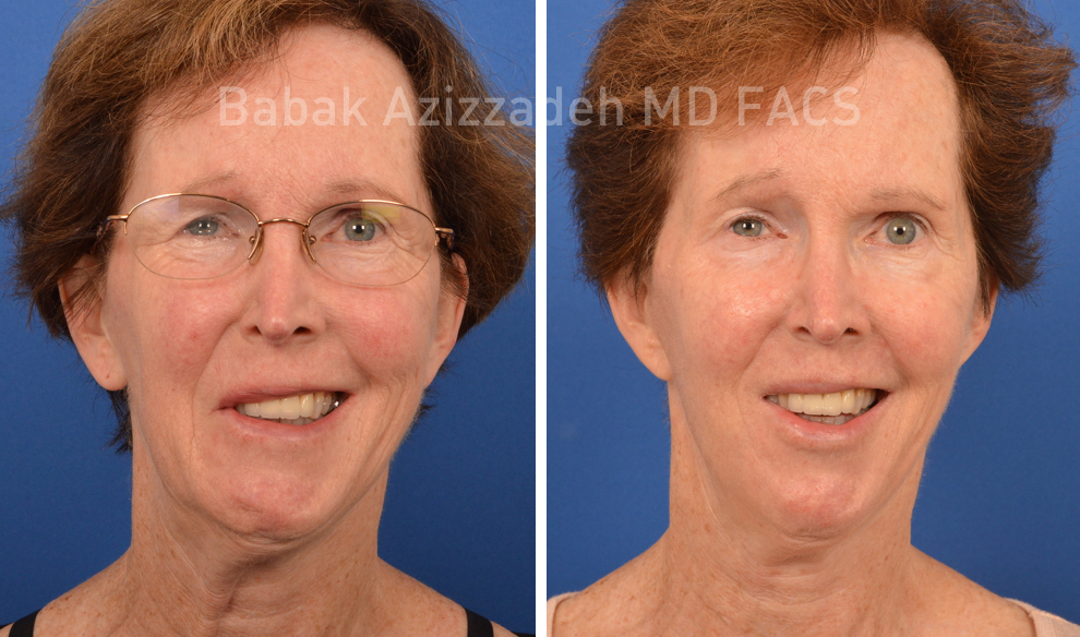eldery woman before and after selective neurolysis