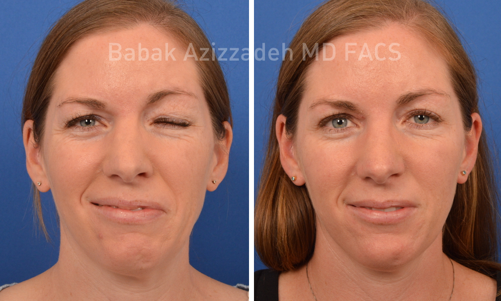female patient before and after facial paralysis treatment