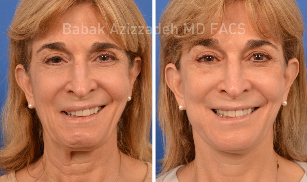 middle age woman before and after selective neurolysis plastysma facial rejuvenation