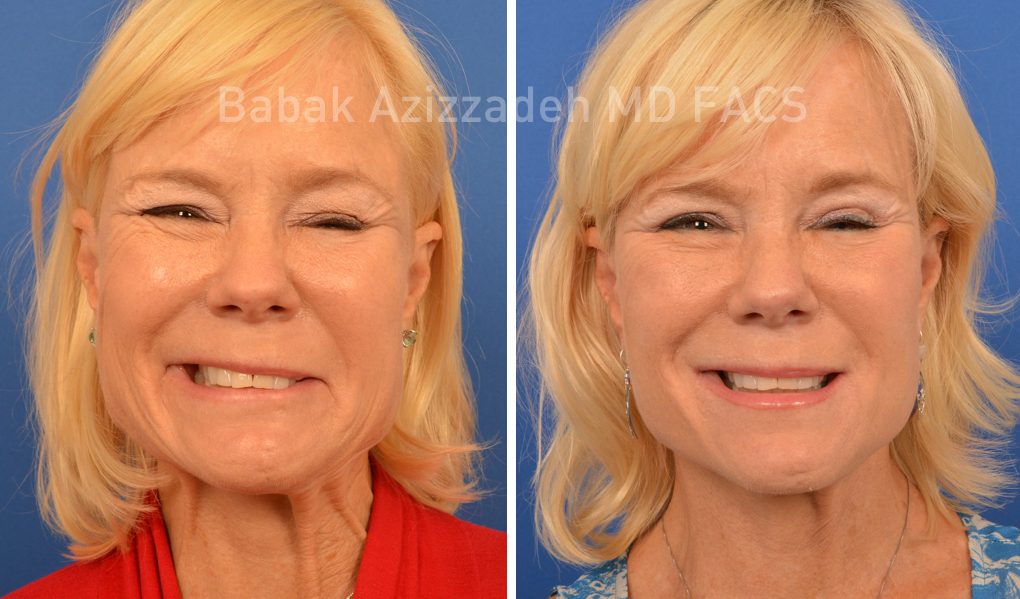 blond woman before and after selective neurolysis plastysma facial rejuvenation