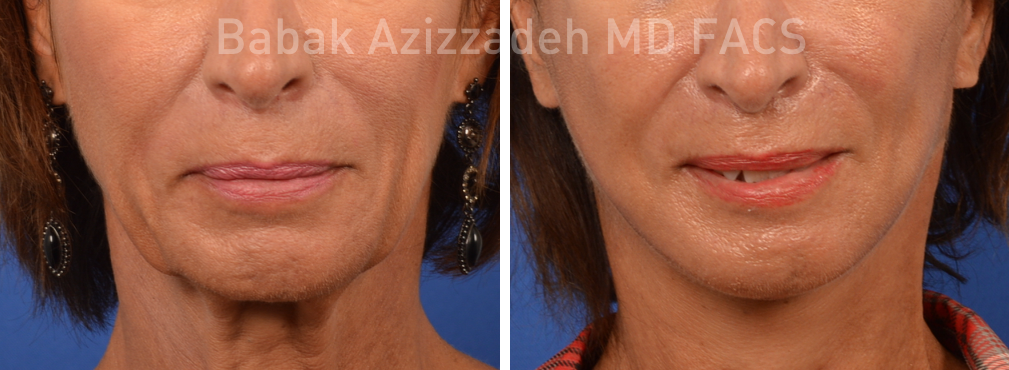 Have before and after facial paralysis question Excuse