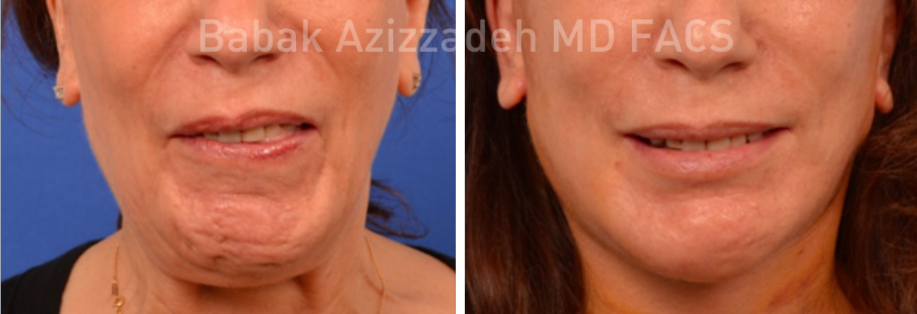 woman before and after selective neurolysis treatment