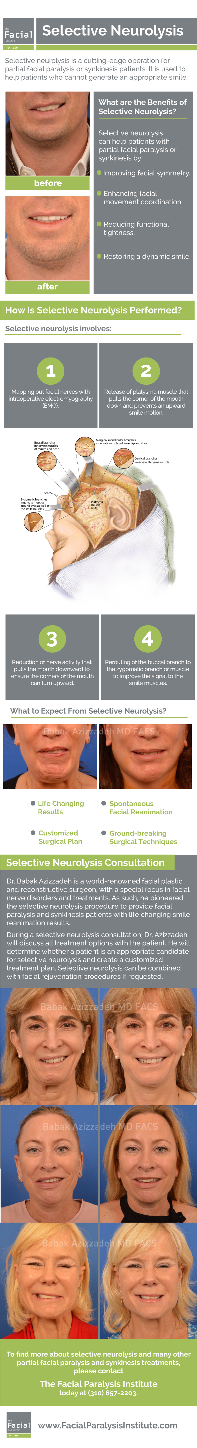 Selective Neurolysis Surgery Infographic