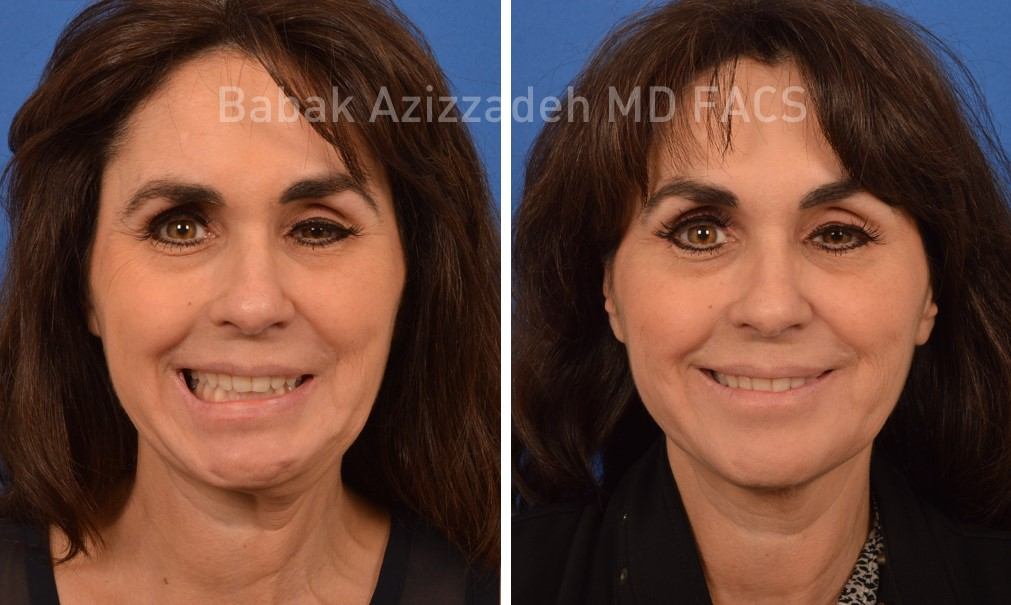 woman before and 3 months after bell's palsy treatment