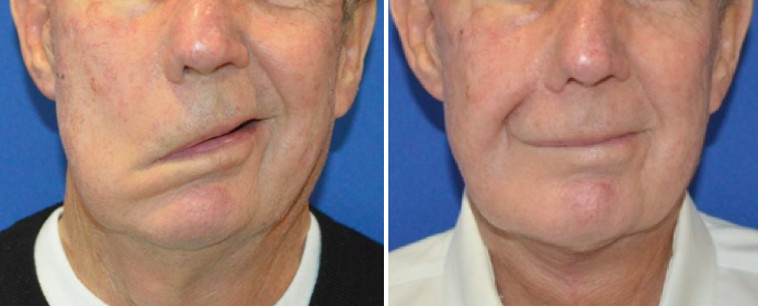 a male patient before and after temporalis tendon transfer