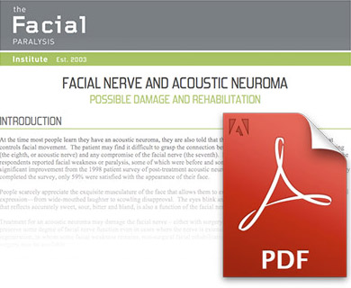 Facial Nerve and Acoustic Neuroma PDF