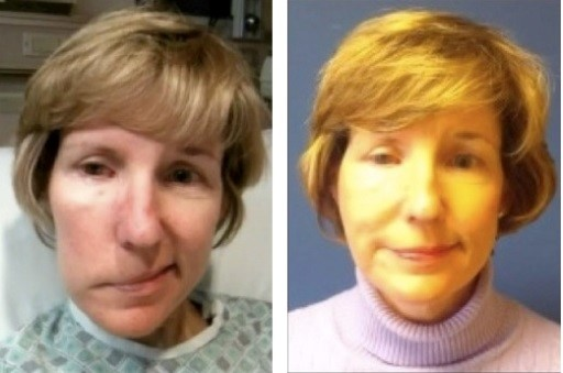 woman before and after facial paralysis surgery
