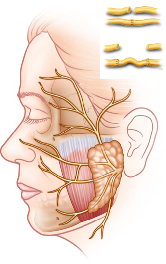 Facial paralysis surgery nerve graft