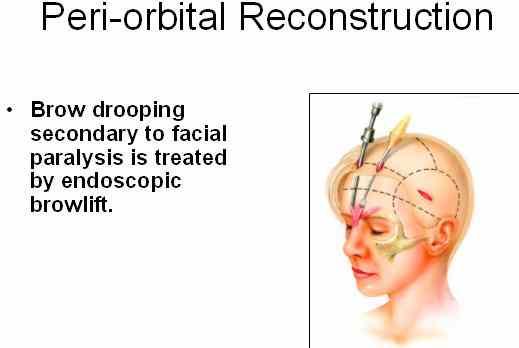fpi endoscopic brow