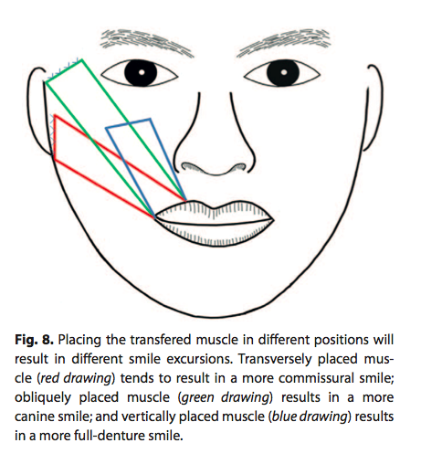 Illustration showing how the arteries and veins of the gracilis muscle should be sewn correctly to the facial arteries and veins during the second stage of facial paralysis reconstruction.