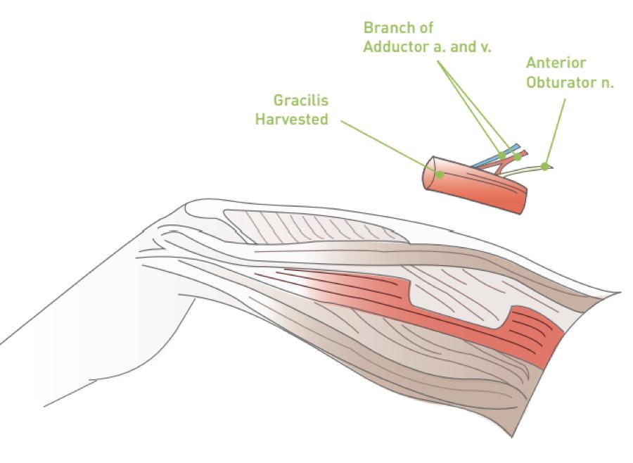 Gracilis Flap Surgery