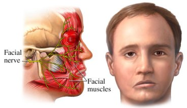 How Does Botox Help Bell's Palsy & Synkinesis?
