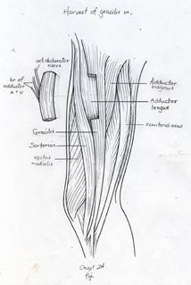 Harvest of a portion of the gracilis muscle with the adductor artery and vein