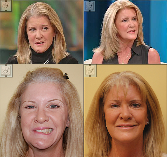 Mary Jo Buttafuoco before and after facelift for synkinesis treatment