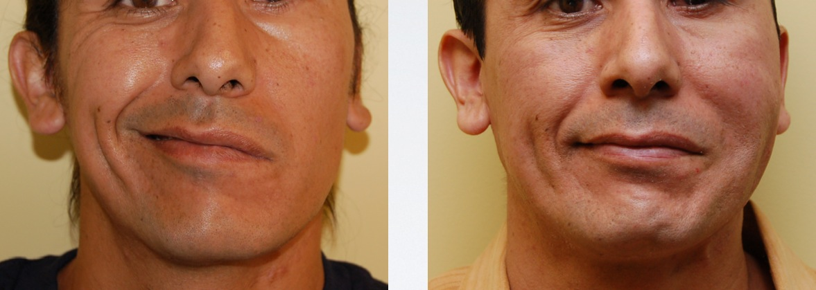 Overcoming the Effects of Facial Paralysis