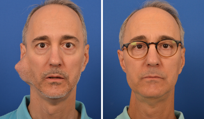 partoidectomy before and after treatment