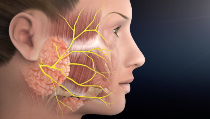 Parotidectomy - Parotid Tumor Surgery | Facial Paralysis Institute