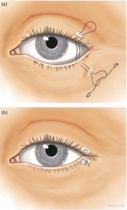 Incised eyelid margins