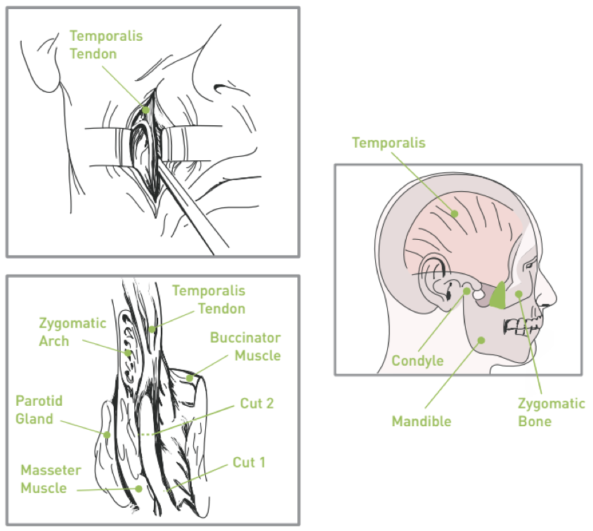 Temporalis Tendon Transfer