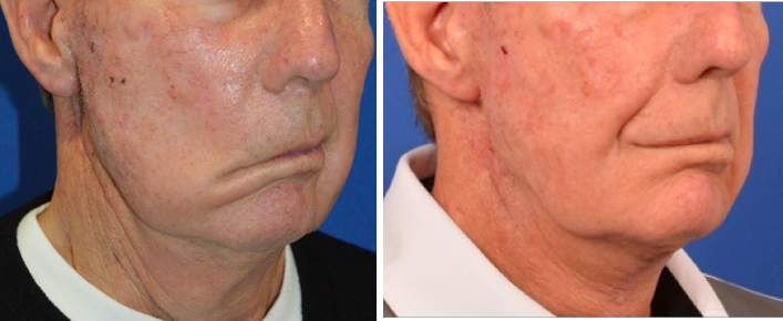 a profile of a male patient before and after temporalis tendon transfer