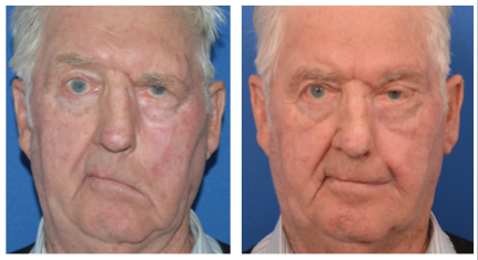 elldery male patient before and after temporalis tendor transfer