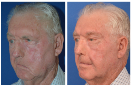 male patient before and after temporalis tendor transfer