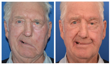 an eldery male patient before and after temporalis tendon transfer