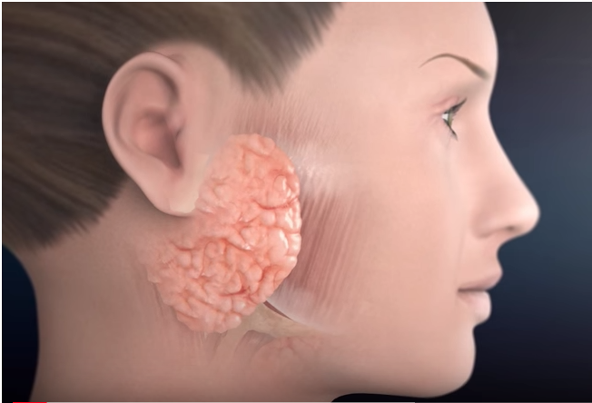 How the Facial Nerve and Parotid Gland Are Connected