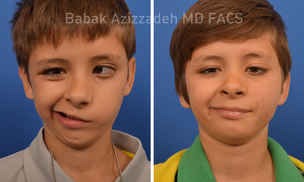 How to Treat Congenital Facial Paralysis with a Gracilis Muscle Transplant