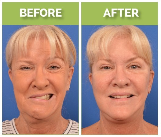 Mary Jo Buttafuoco Facial Reanimation Surgery