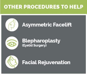 Procedures for Facial Paralysis