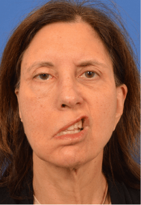 Dual innervated gracilis by cross facial nerve graft and masseteric-facial nerve transfer Before Watermarked