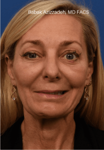 Selective neurolysis, facial rejuvenation and lower blepharoplasty After Watermarked