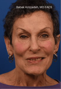 Selective neurolysis with facial rejuvenation After Watermarked