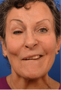 Selective neurolysis with facial rejuvenation before Watermarked