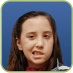 A young girl with Congenital Facial Paralysis