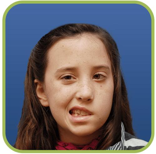 A young girl with Congenital Facial Paralysis