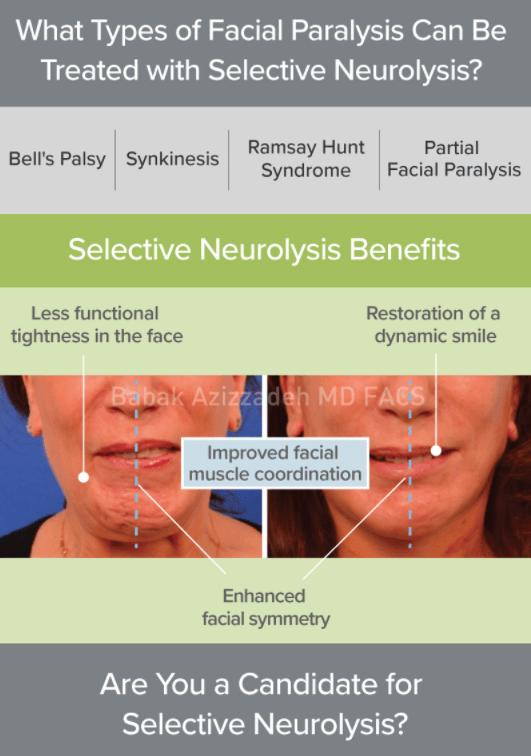 Selective Neurolysis part 2
